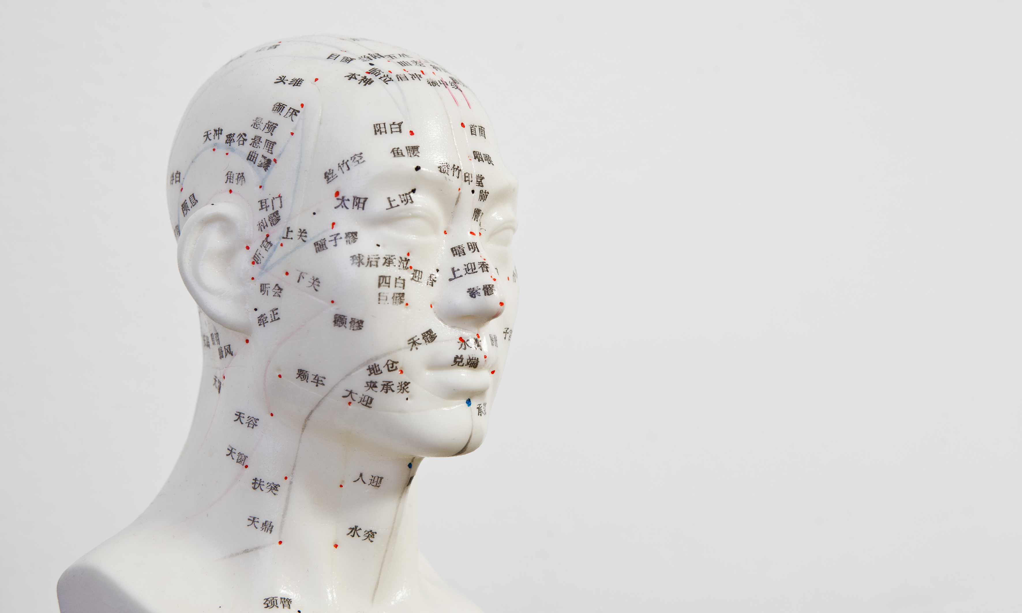 Where can acupuncture help?